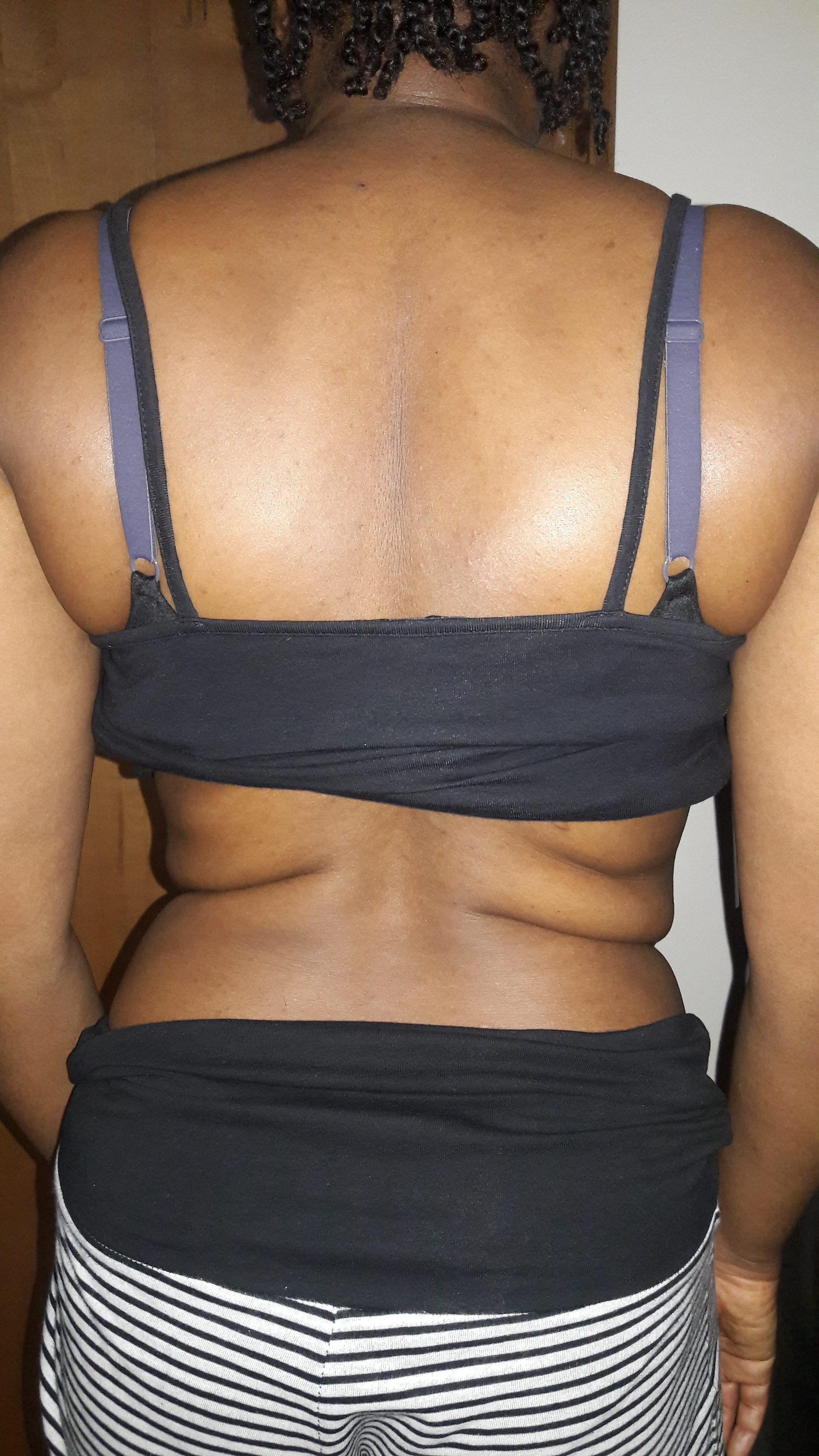scliosis assessment